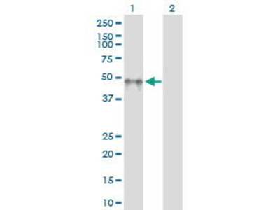 Rabbit Anti-KIR2DL5 Antibody