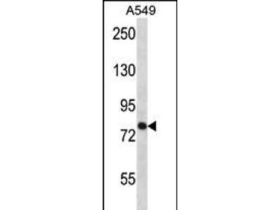 Rabbit Anti-TRPC3, CT Antibody