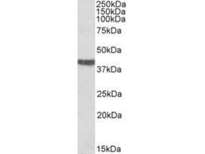Goat Anti-Cardiac Troponin T Antibody