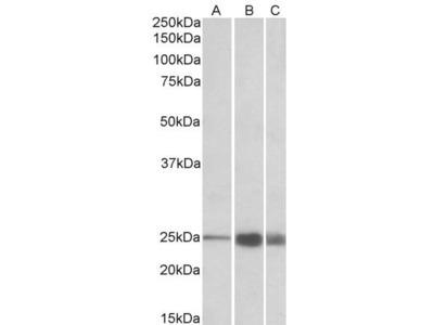 Goat Anti-TNNI2 Antibody