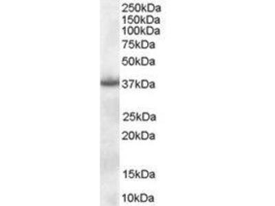 Goat Anti-Nucleophosmin Antibody