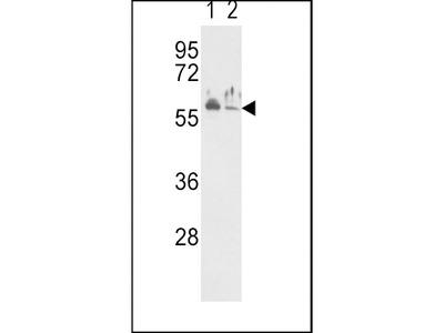 Rabbit Anti-Natriuretic Peptide Receptor C, NT Antibody