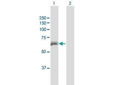 Mouse Anti-ANTXR2 Antibody