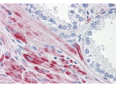 Mouse Anti-ADAMTS17 Antibody