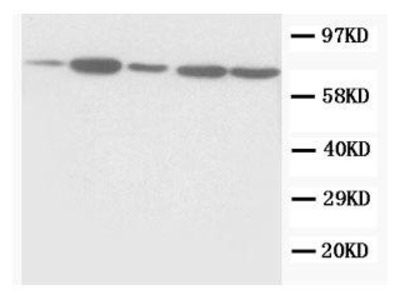 Rabbit Anti-Succinate Dehydrogenase Antibody
