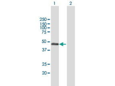 Mouse Anti-RCN2 Antibody
