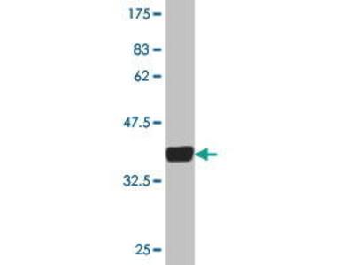 Mouse Anti-GRM5 Antibody