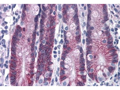 Rabbit Anti-ASAH2, CT Antibody