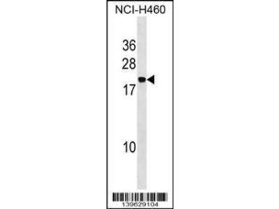 Rabbit Anti-PPIAL4A, ID Antibody