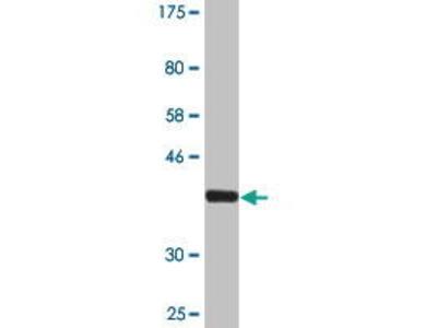 Mouse Anti-DTYMK Antibody