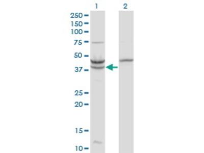 Mouse Anti-UPB1 Antibody