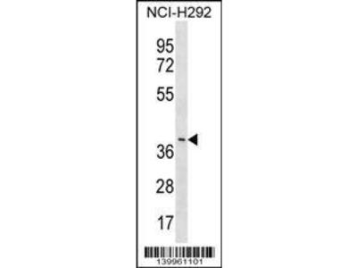 Rabbit Anti-YV012, CT Antibody