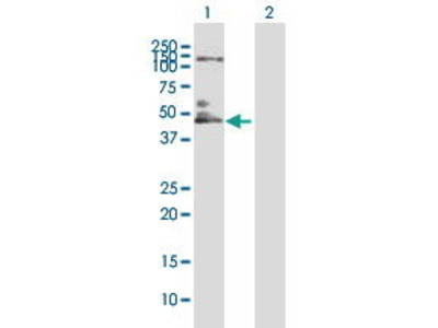 Mouse Anti-IL10RB Antibody