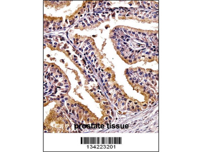 Rabbit Anti-PHLDA2, CT Antibody