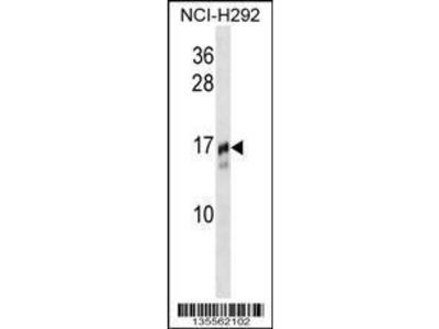 Rabbit Anti-TRAPPC2, NT Antibody