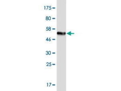 Mouse Anti-TMIGD1 Antibody