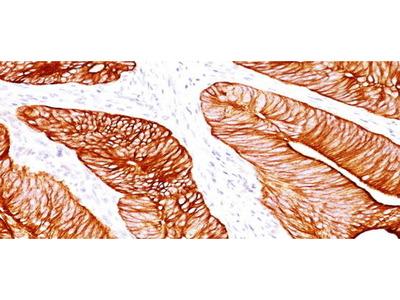Mouse Anti-Cytokeratin 8 Antibody