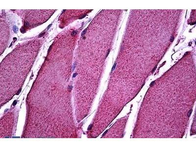 Rabbit Anti-ATP11B, NT Antibody