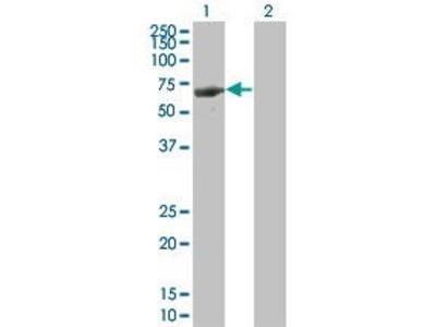 Mouse Anti-LRIT3 Antibody