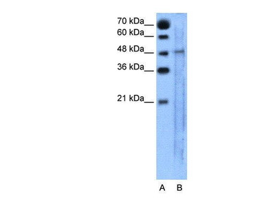 Rabbit Anti-SLC25A46 Antibody