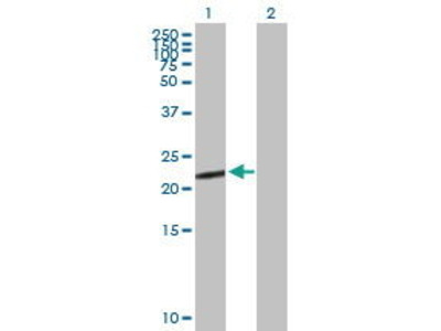 Mouse Anti-CGB5 Antibody