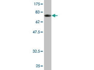 Mouse Anti-ALDH1A1 Antibody