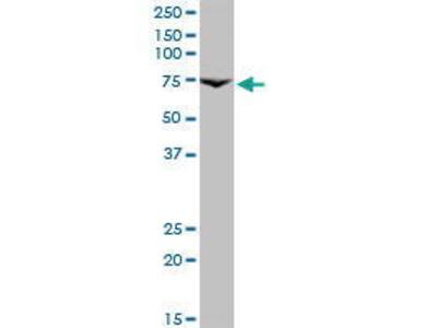 Mouse Anti-Prolactin Receptor Antibody