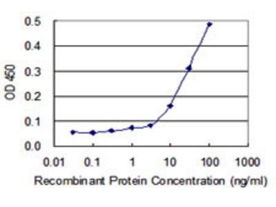 Mouse Anti-AUH Antibody