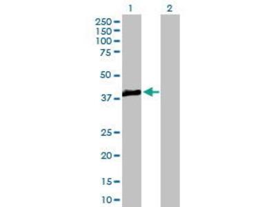 Mouse Anti-TRIB3 Antibody