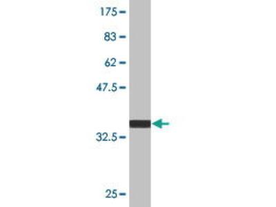 Mouse Anti-PIM3 Antibody