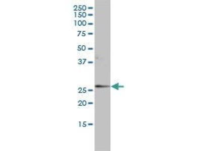 Mouse Anti-AGP1 Antibody