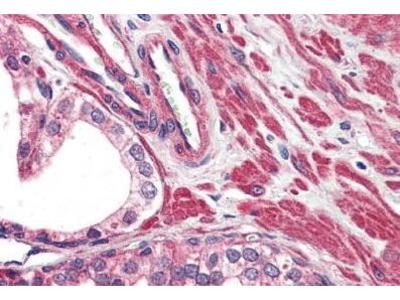 Rabbit Anti-TRPV2 Antibody