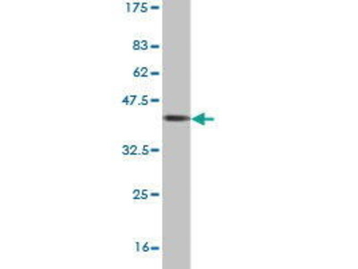 Mouse Anti-USP39 Antibody