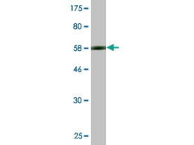 Mouse Anti-RPRD1B Antibody