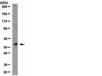 Rabbit Anti-Nicotinic Acetylcholine Receptor alpha 3 Antibody