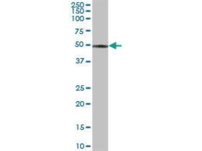 Mouse Anti-CCM2 Antibody