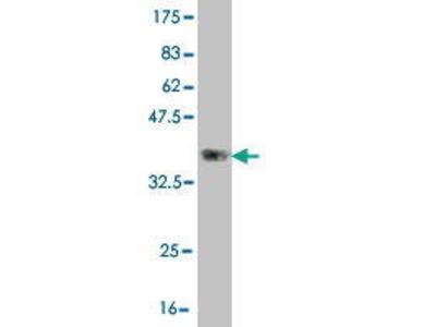 Mouse Anti-CLCA2 Antibody