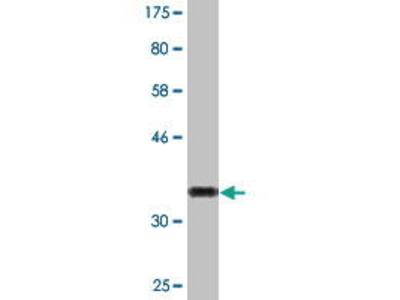 Mouse Anti-XAGE2 Antibody