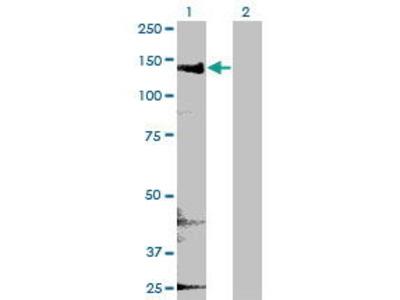 Mouse Anti-CYFIP2 Antibody