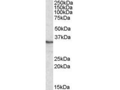 Goat Anti-Protein Phosphatase 4 Antibody