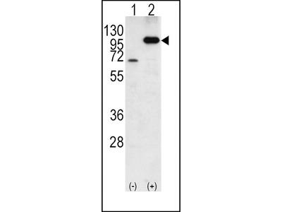 Rabbit Anti-APP, CT Antibody