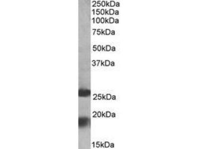 Goat Anti-MPV17 Antibody
