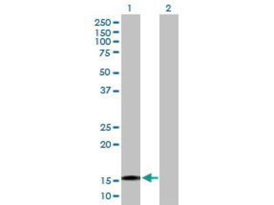 Mouse Anti-Tetratricopeptide Repeat Protein 32 Antibody