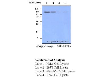 Mouse Anti-Coilin Antibody