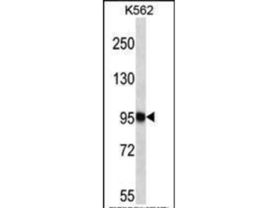 Rabbit Anti-TTC15, CT Antibody