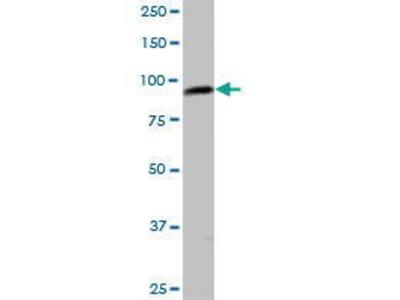 Mouse Anti-C1orf25 Antibody