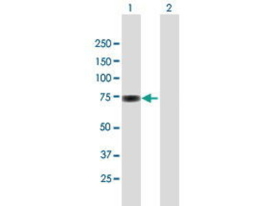 Mouse Anti-SP100 Antibody