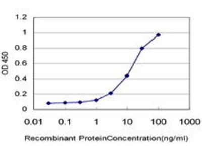 Mouse Anti-ARMC4 Antibody