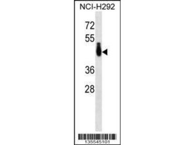 Rabbit Anti-PABPC4L, CT Antibody