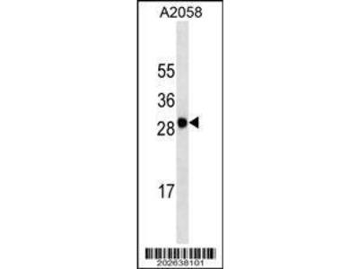 Mouse Anti-MART-1, CT Antibody